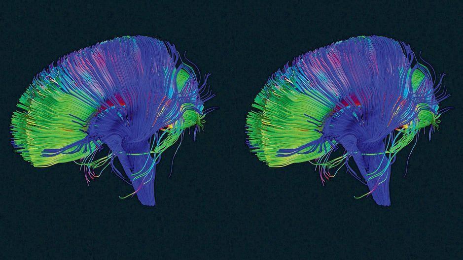 Votre cerveau possède un bouton 'supprimer'. Et voici comment l'utiliser