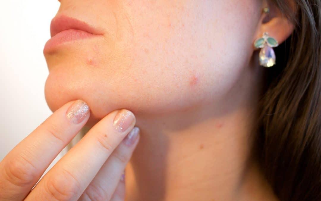 Huiles essentielles : Découvrez le remède miracle naturel contre l'acné